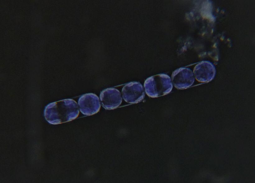 Photomicrograph of Melosira BK 2020